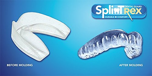 Professional Teeth Mouth Guards For Teeth Grinding And