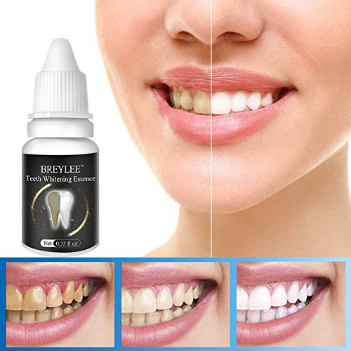 Teeth Whitening Essence Treatment for Plaque NetBlack ToothYellow ToothSmoke Tobacco Stain Plaque Net Teeth Whitening Toothpaste Yiitay