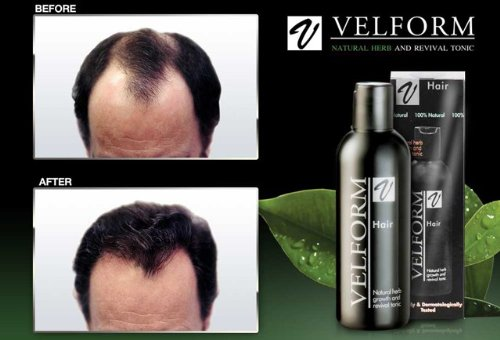Velform Hair Grow Tonic Stimulates Hair Growth Stop Hair Loss Hair Fall 200 Ml x 3 Bottles